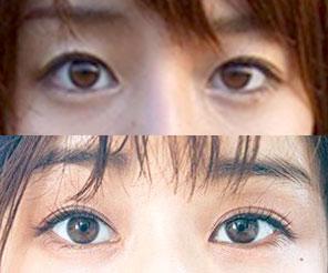 田中みな実, 目, 変わった, 二重幅